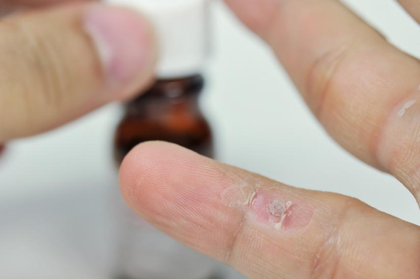 szemölcs egy lábon papilloma vakcina vírus toszkána hímek