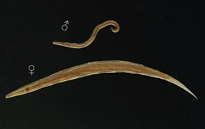 Anatomie Patologica, Enterobius vermicularis histopathology