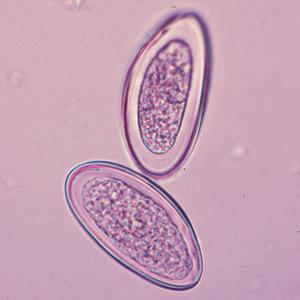 gyógyszerek minden parazita ellen intézkedések a gömbférgekkel való fertőzés megelőzésére