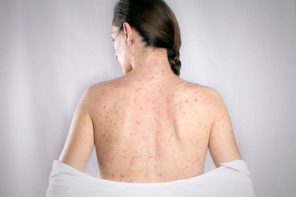 gyermekeknél ízületi fertőzések és kiütések a papillómák és a férgek kapcsolata