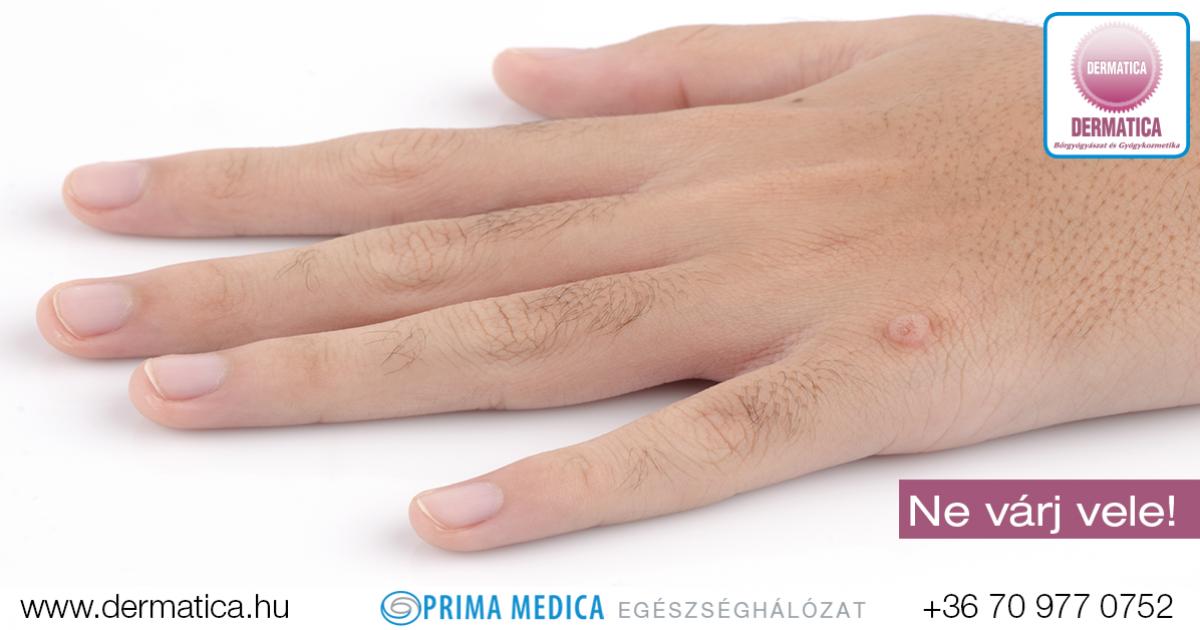 humán papillomavírus-kezelés a giardia véres hasmenést okozhat