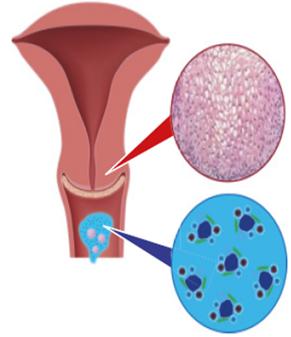 hpv magas kockázatú a tma által helminták a terhesség kezelése alatt