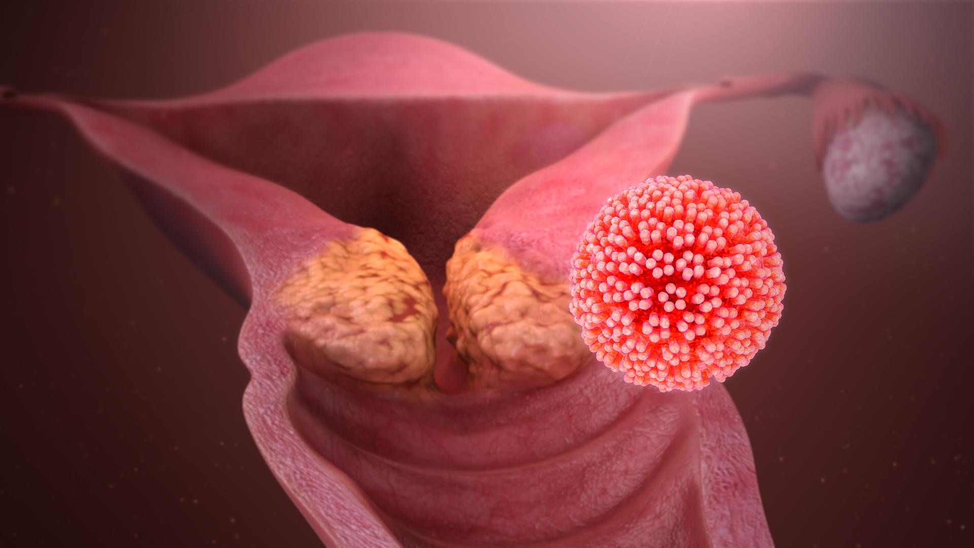 helminták parazita férgek képek a giardia protozoákról