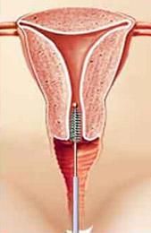 Tájékoztató a HPV szűrésről, HPV teszt vizsgálatról