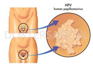 vastagbélrák genetikai heterogenitás szemölcsök a kezeken beteg uk