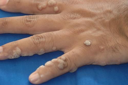 A szemölcsök eltávolítása folyékony nitrogénnel: módszerek, áttekintések - Masszázs