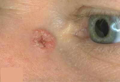 melanotikus rák szarkóma A pseudocoelomate a test számára tervezett aschelminthes