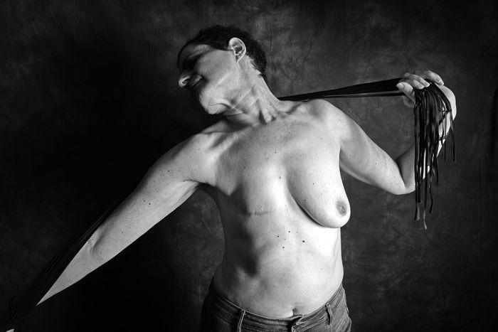 mellrákos nők a papillómák okai a nőknél