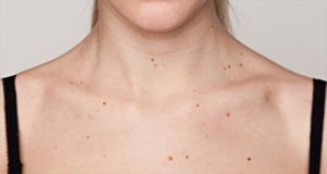 Mi a helyzet a kar alatti papillómákkal: injekciós kezelés, kenőcsök és krémek