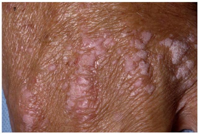 mycoplasma condyloma in