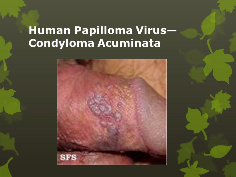 Papilómák: a diagnózis és kezelés típusai, okai, jellemzői