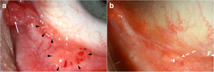 Human papilloma virus kezelese, Îndepărtarea papilomelor cât se vindecă decât frotiul