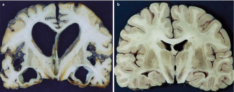 papilloma pikkelyes amygdala