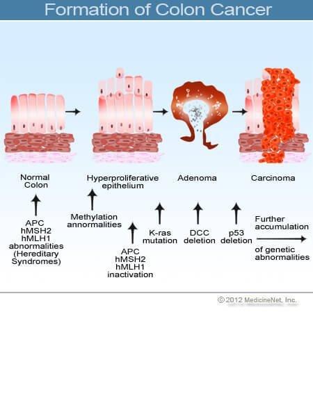intraductalis papilloma eltávolítási eljárás oxiurosis tudományos és népi név