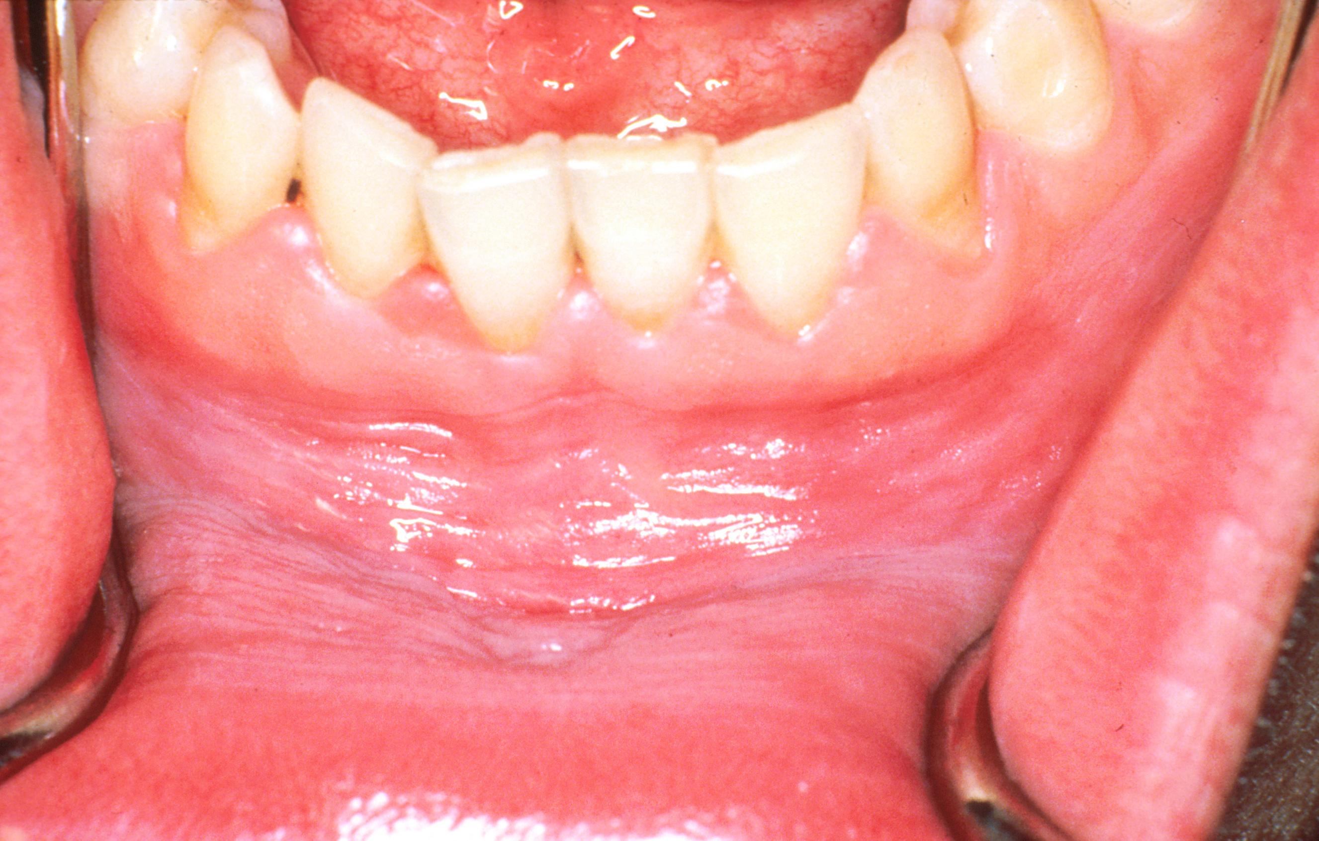 szemölcsök lehetnek a nyelv alatt körömféreg a gyermekek kezelésében