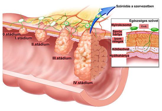 vastagbél- és végbélrák a férgek és paraziták tünetei és kezelése