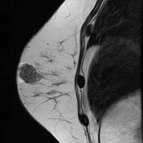 intraduktális potenciális malignus papilloma