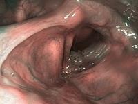 Shiitake gomba HPV ellen - AHCC az új hatóanyag