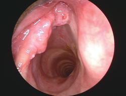 a mandulák rosszindulatú daganata
