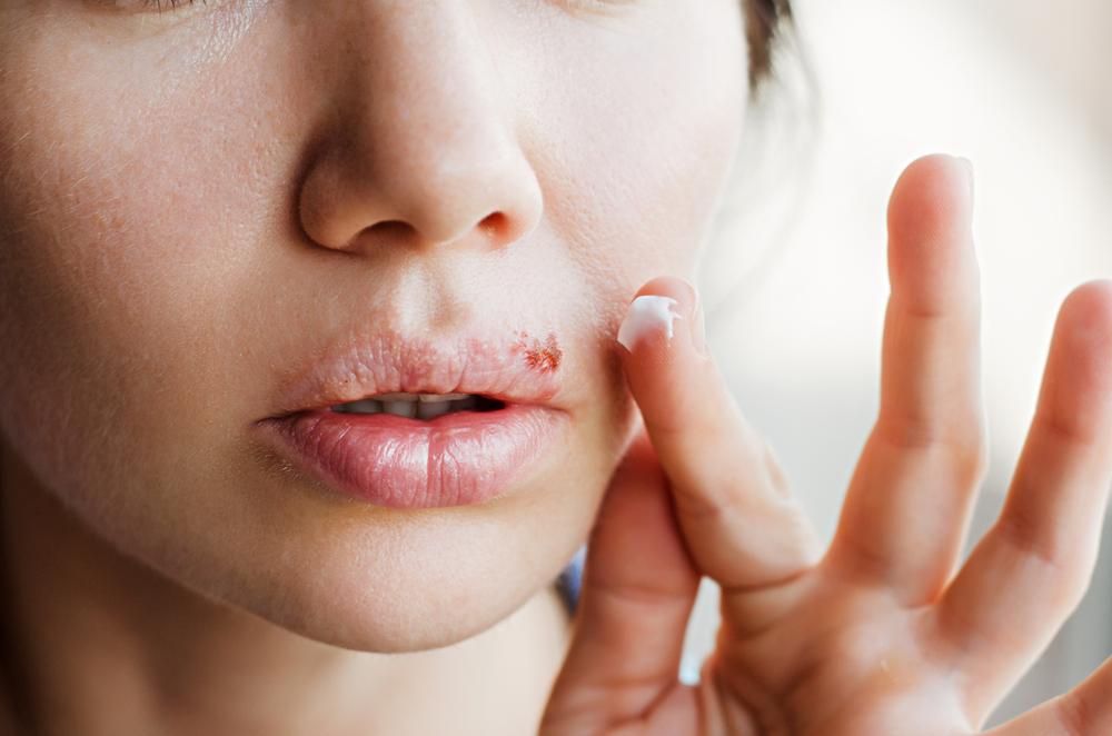 HPV fertőzés a szájban - Orvos válaszol, Papilloma a száj belsejében