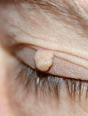 a szem közelében lévő papillómák eltávolítása