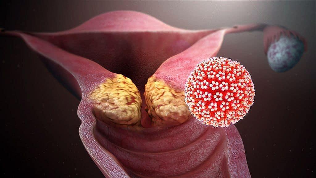 hpv vírus pozitív