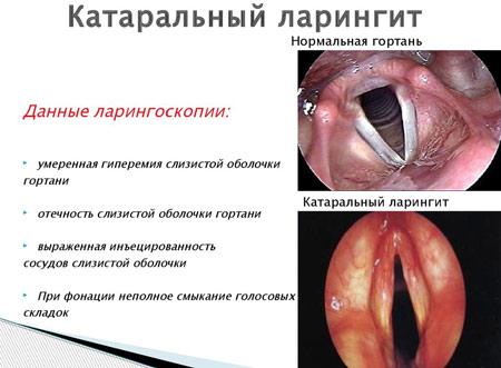 koleretikus gyógyszerek a férgek eltávolítására hóna alatti folyamatok
