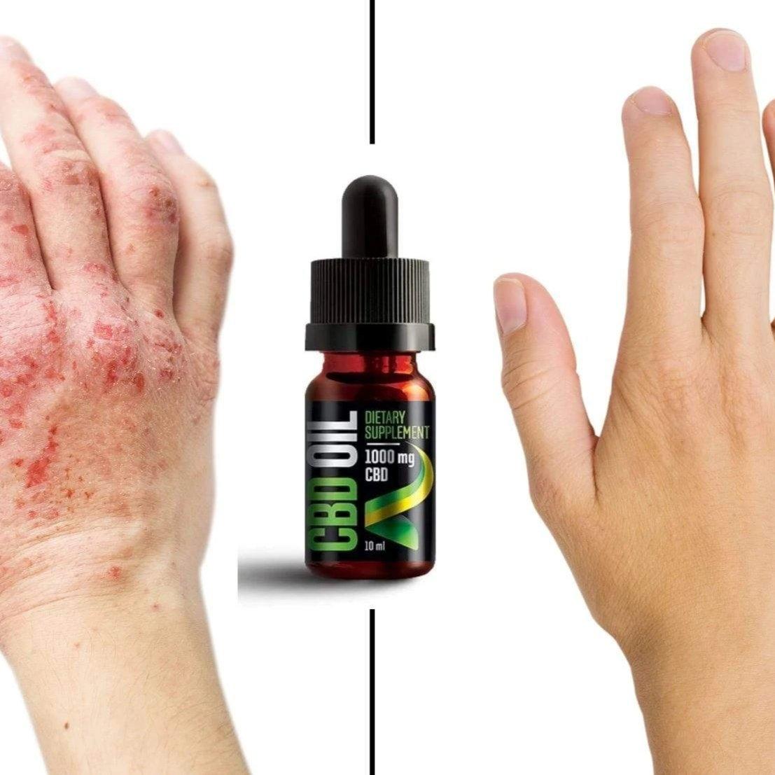 Papillomavírus kezelés férfiak számára