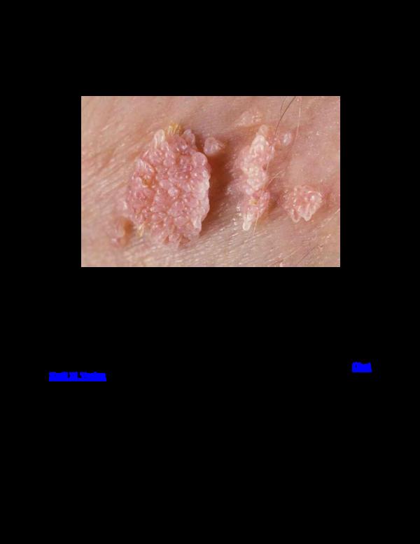 gejala klinis papilloma