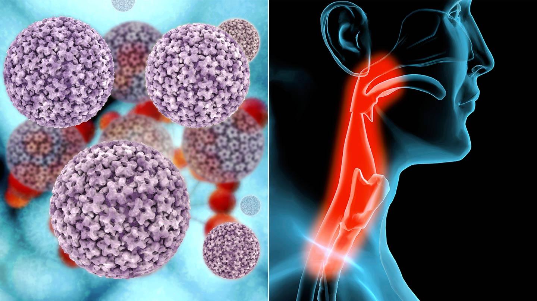 emberi papillomavírus és rosszindulatú daganat)