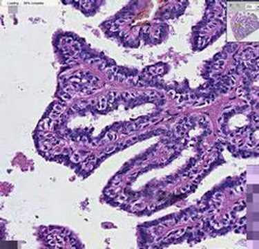 intraductalis papillomatosis hisztopathology
