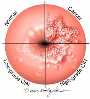 HPV-fertőzés tünetei és kezelése Genitális humán papillomavírus fertőzés