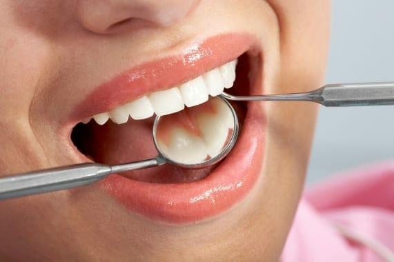 kapcsolat a hpv és a szájrák között
