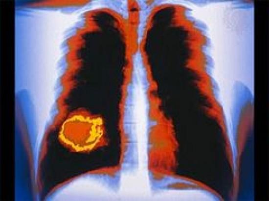 A tüdőrák célzott kezelése - Tüdőrák-kezelészoboszlosound.hu