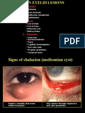 A szemhéj rosszindulatú daganatok - Carcinoma