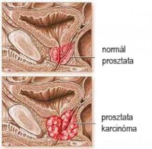 A toxinok eltávolítása prosztatagyulladással. A férfi húgyivarrendszer szervei