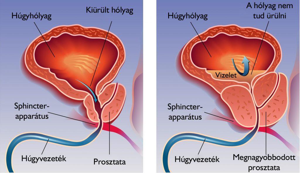 gyomorrák h pylori-ból papilloma az emlőhöz c3